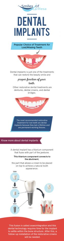 Replace your Missing Teeth with Quality Dental Implants in La Mesa, CA from Smiles of LA Mesa