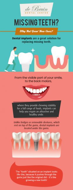 Restore Your Smile with Excellent Implant Dentistry Solutions from de Bruin Dental Center