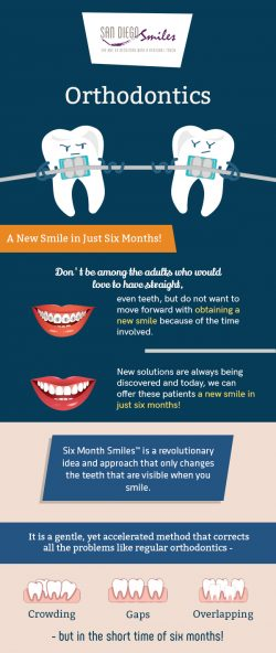 San Diego Smile – Top-rated Dental Clinic for Orthodontic Treatment in El Cajon, CA