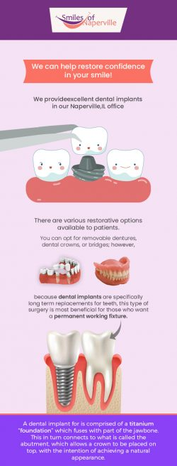 Smiles of Naperville Provides Excellent Dental Implants Service in Naperville, IL