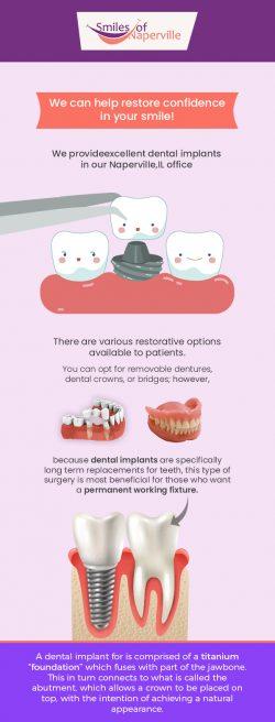 Smiles of Naperville Provides Excellent Dental Implants Service in Naperville, IL
