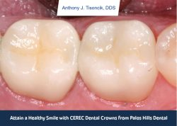 Attain a Healthy Smile with CEREC Dental Crowns from Palos Hills Dental