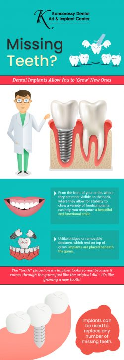 Coloman E Kondorossy DMD FAGD – An Implant Dentistry Specialist in Somerset, NJ
