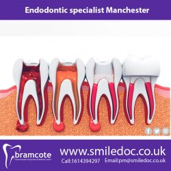 Endodontic specialist Manchester