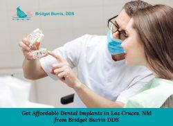 Get Affordable Dental Implants in Las Cruces, NM from Bridget Burris DDS