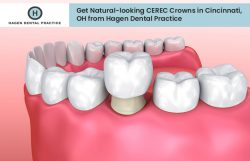 Get Natural-looking CEREC Crowns in Cincinnati, OH from Hagen Dental Practice