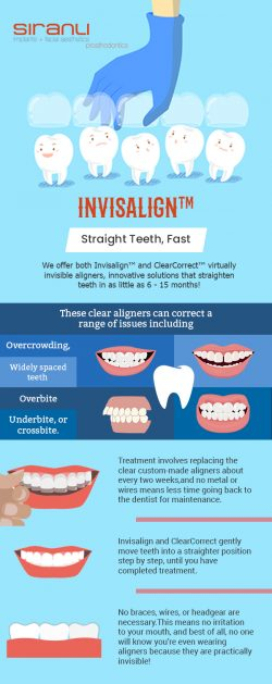 Get Straight Teeth Faster with Invisalign from Siranli Implants & Facial Aesthetics & Pr ...