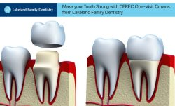 Make your Tooth Strong with CEREC One-Visit Crowns from Lakeland Family Dentistry