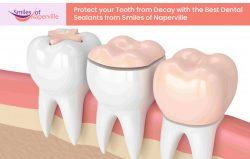Protect your Teeth from Decay with the Best Dental Sealants from Smiles of Naperville