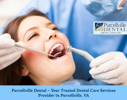 Purcellville Dental – Your Trusted Dental Care Services Provider in Purcellville, VA