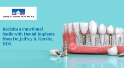 Reclaim a Functional Smile with Dental Implants from Dr. Jeffrey B. Kravitz, DDS