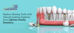 Replace Missing Teeth with Natural-looking Implants from Lifetime Family Dentistry