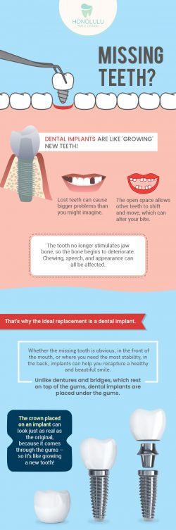 Restore your Absent Teeth with Affordable Dental Implants from Honolulu Smile Design
