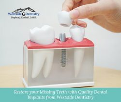 Restore your Missing Teeth with Quality Dental Implants from Westside Dentistry