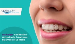 Invisalign: An Effective Orthodontic Treatment by Smiles of La Mesa