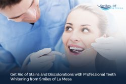 Get Rid of Stains and Discolorations with Professional Teeth Whitening from Smiles of La Mesa