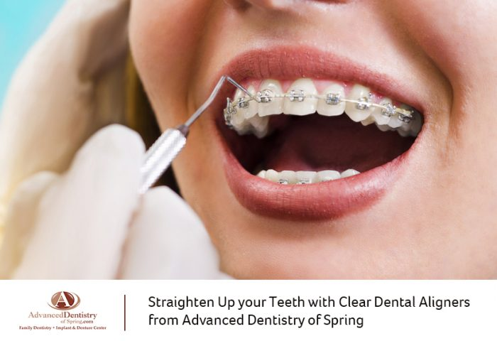 Straighten Up your Teeth with Clear Dental Aligners from Advanced Dentistry of Spring
