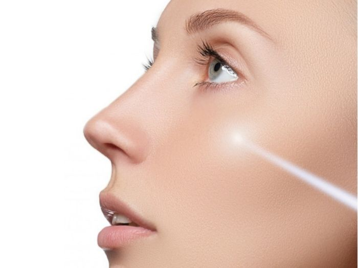 Acne Scar Laser treatment in Chandigarh