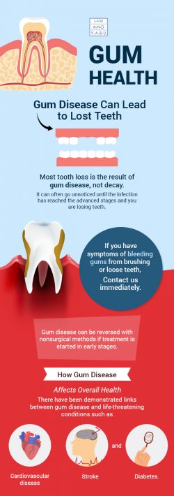 Maintain your Gums with Gum Disease Treatment from Lim and Yabu