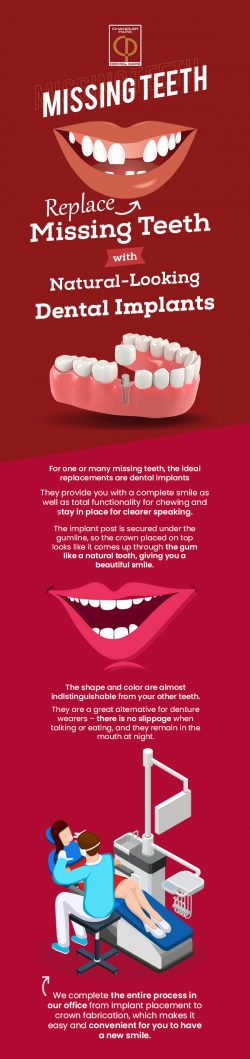 Replace Missing Teeth with Natural-looking Dental Implants from Chandler Park Dental Care