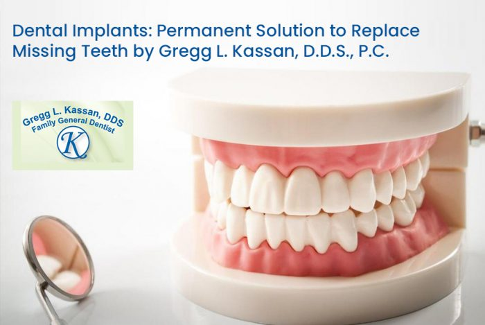 Dental Implants: Permanent Solution to Replace Missing Teeth by Gregg L. Kassan, D.D.S., P.C.