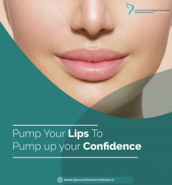Lip Augmentation in Cardiff