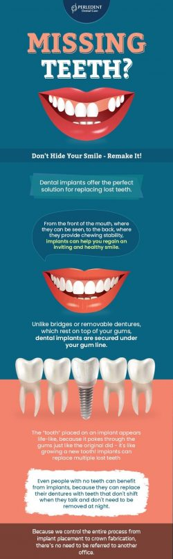 Perledent Dental Care – Remake Your Smile With Dental Implants