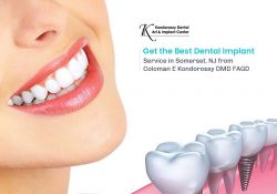 Get the Best Dental Implant Service in Somerset, NJ from Coloman E Kondorossy DMD FAGD