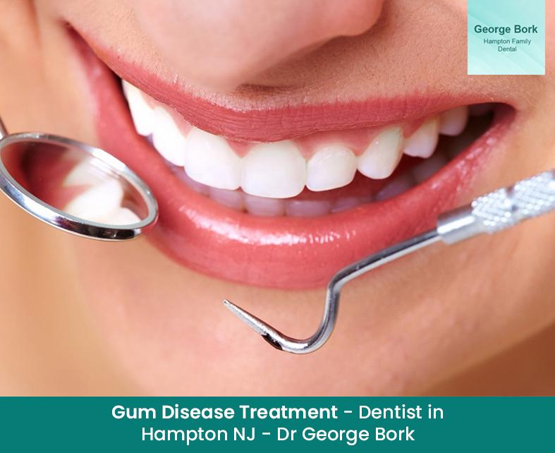 Gum Disease Treatment – Dentist in Hampton NJ – Dr George Bork