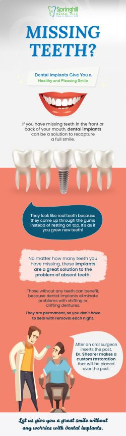 Replace Missing Teeth with Comprehensive Dental Implants from Springhill Dental