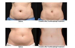Coolsculpting in Santa Clara | Mendhair.com