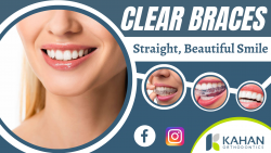 Advanced Dental Treatment To Recreate Your Beautiful Smile