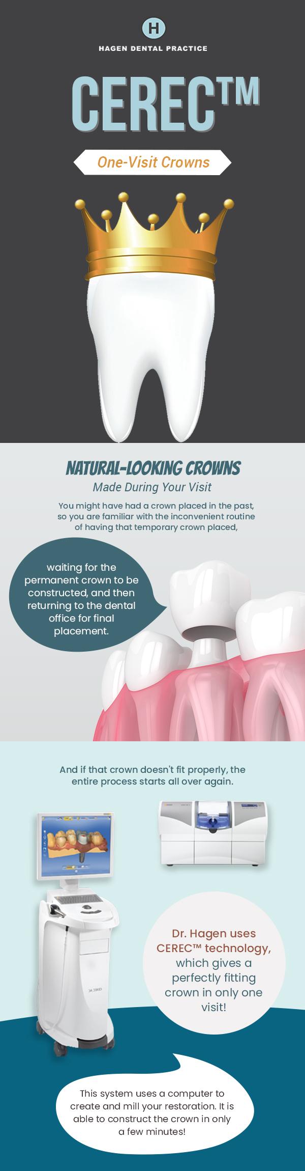 Get CEREC Crowns in Just One-Visit from Hagen Dental Practice