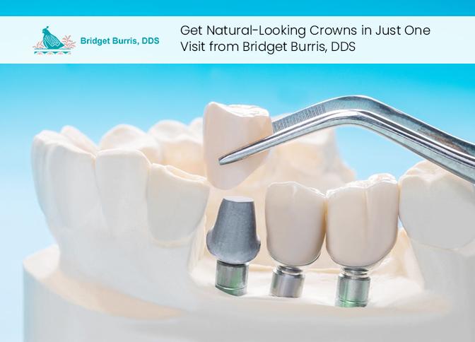 Get Natural-Looking Crowns in Just One Visit from Bridget Burris, DDS
