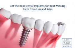 Get the Best Dental Implants for Your Missing Teeth from Lim and Yabu