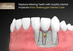 Replace Missing Teeth with Quality Dental Implants from Sheboygan Dental Care