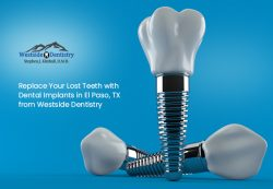 Replace Your Lost Teeth with Dental Implants in El Paso, TX from Westside Dentistry