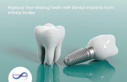 Replace Your Missing Teeth with Dental Implants from Infinite Smiles