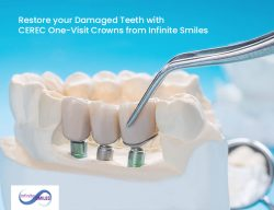 Restore your Damaged Teeth with CEREC One-Visit Crowns from Infinite Smiles