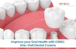 Improve your Oral Health with CEREC One-Visit Dental Crowns