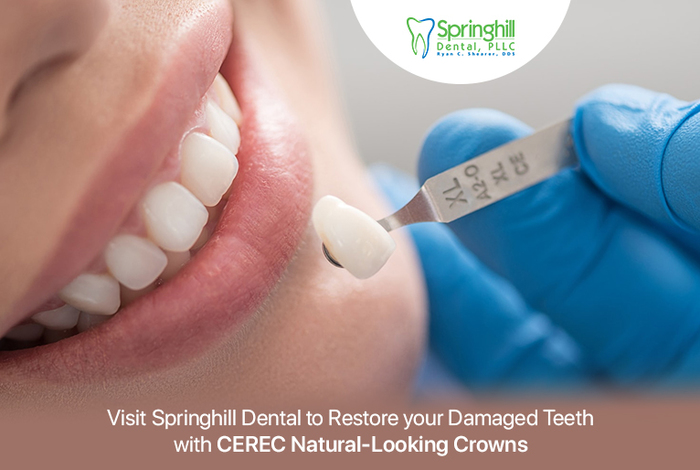 Visit Springhill Dental to Restore your Damaged Teeth with CEREC Natural-Looking Crowns