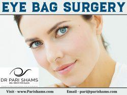 Eye Bag Surgery At Pari Shams