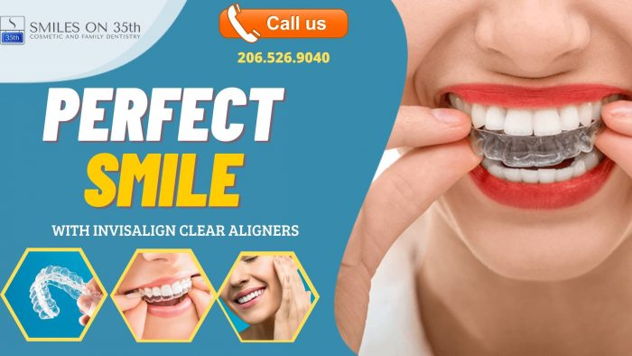 Renovate And Improve Your Smile With Invisalign