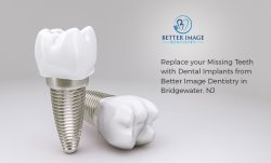 Replace your Missing Teeth with Dental Implants from Better Image Dentistry in Bridgewater, NJ