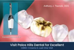 Visit Palos Hills Dental for Excellent CEREC Crowns in Just One Visit