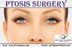 Ptosis Surgery At Pari Shams