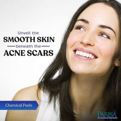 Acne Treatment in Chandigarh