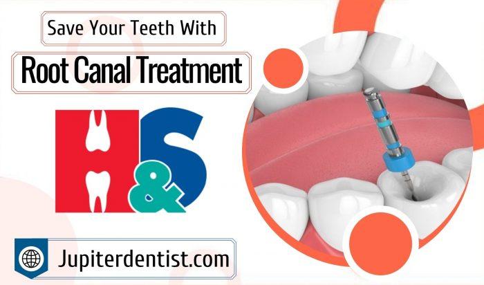 Painless Endodontic Treatment