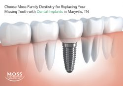 Choose Moss Family Dentistry for Replacing Your Missing Teeth with Dental Implants in Maryville, TN