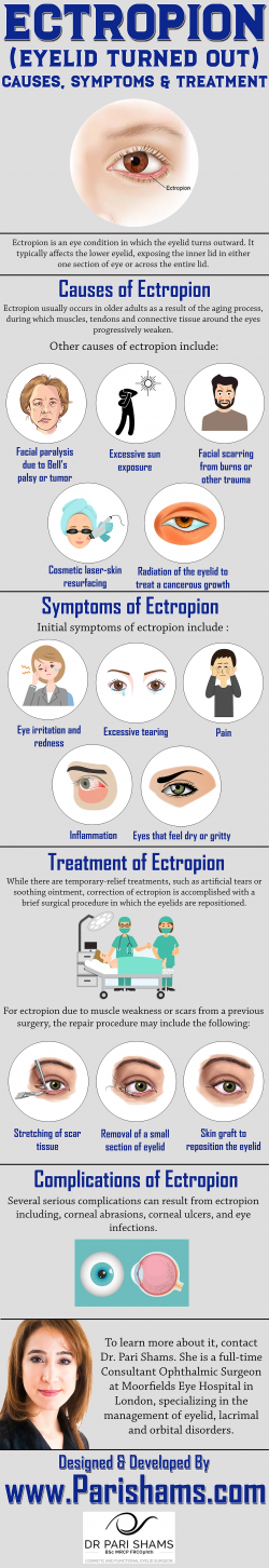 ECTROPION (Eyelid Turned Out) – Causes, Symptoms & Treatment
